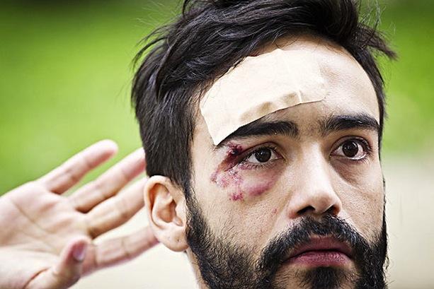 O estudante de direito André Cardoso Gomes Baliera que foi vítima de ataque homofóbico