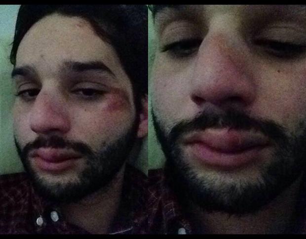 Danilo Pimental com o rosto inchado, o maxilar fraturado, o nariz quebrado e a boca inchada depois de agressão na rua Augusta, em São Paulo ( Arquivo Pessoal)